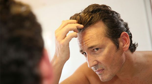 Dünne Haare beim Mann